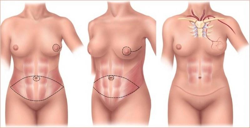 ricostruzione mammella